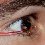 Электроретинография глаза в Финляндии