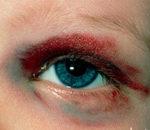 Травмы глаза – лечение в Финляндии