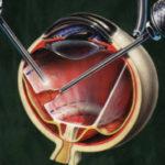 Хирургия сетчатки в Финляндии