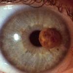 Меланома глаза - лечение в Финляндии