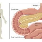 Удаление поджелудочной железы - Хирургия в Германии больница Саксенхаузен