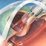 Хирургия катаракты в Финляндии