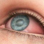 Синдром сухости глаз - лечение в Финляндии