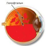 Гемофтальм в Финляндии
