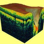 Лазерная томография сетчатки в Финляндии