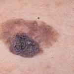 Меланома - лечение в Швейцарии
